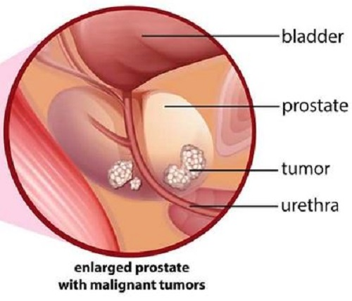 Signs of Prostate